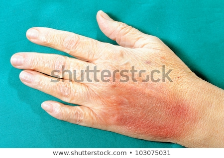 A Human Hand with Bruise Stock photo © bluering