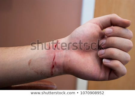 wrist cutting Stock photo © nito