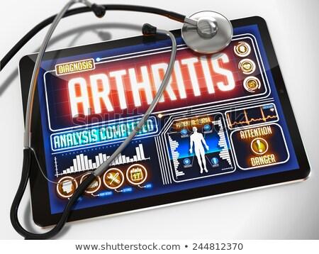 osteoarthritis on the display of medical tablet stock photo © tashatuvango
