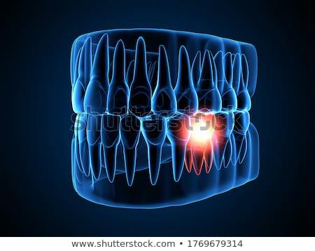 Mandíbula dentes ver filme medicina branco Foto stock © boggy