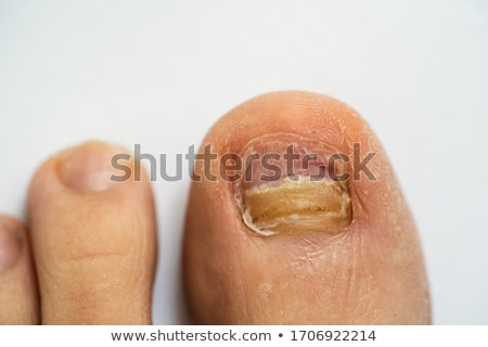 infected fungal toe nail stock photo © lightsource