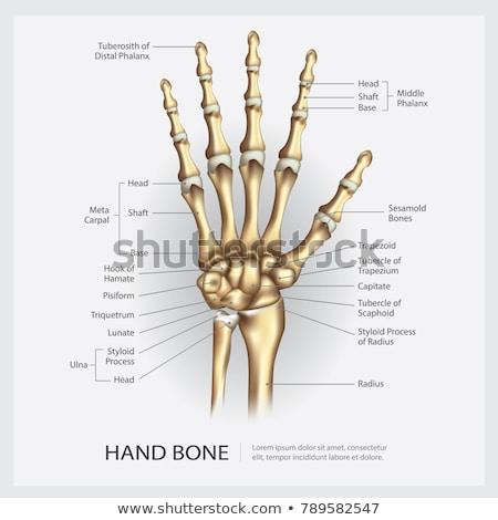 Mão ossos raio x tanto mãos exame Foto stock © idesign