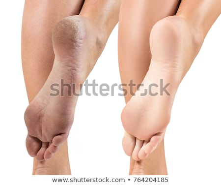 Female feet with calluses, isolated on white Stock photo © Nobilior