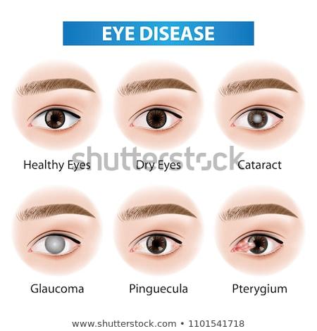 Glaucoma oog ziekte mooie abstract lichtblauw Stockfoto © Tefi