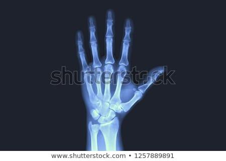 Mão raio x médico médico Foto stock © ldambies