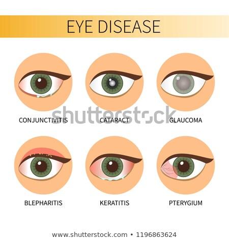 Human eye disease with viral conjunctivitis Stock photo © bluering