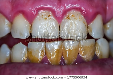 Tooth And Gums Disease Stock photo © Lightsource