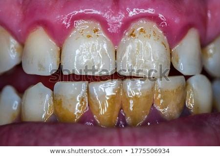 guma · choroba · porównanie · zdrowych · zębów · niezdrowy - zdjęcia stock © lightsource