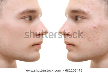Homem acne moço problema pele isolado Foto stock © sapegina