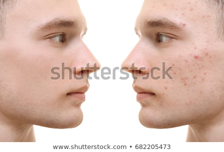 Man with acne Stock photo © sapegina
