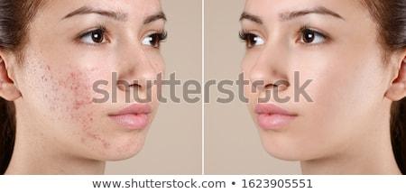 Akne jungen jugendlich weiblichen halten Spiegel Stock foto © sumners
