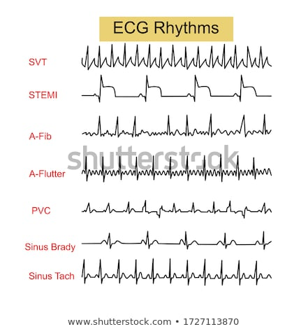 Stock photo: Tachycardia and Bradycardia