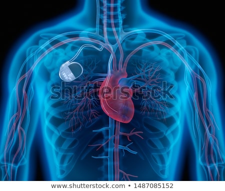 pacemaker stock photo © alexonline