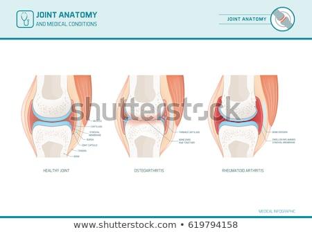 Osteoarthritis and normal joint anatomy Stock photo © Tefi
