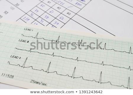 Cardiograma papel médico hospital medicina estresse Foto stock © jordanrusev