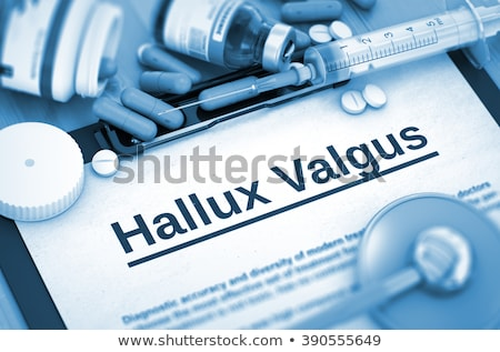 Hallux Valgus. 3D Medical Concept. Stock photo © tashatuvango