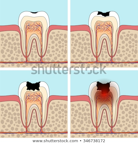Foto stock: Progressive Stages Of Tooth Decay Caries
