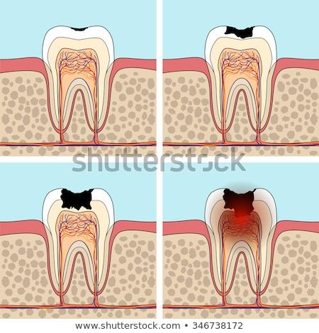 diente · abierto · femenino · boca · tres · pasos - foto stock © adrian_n