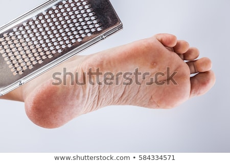 dry dehydrated skin on the heels of female feet with calluses stock photo © traimak