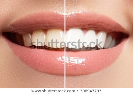 Perfect smile after bleaching. Dental care and whitening teeth.  Stock photo © serdechny