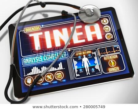 Tinea on the Display of Medical Tablet. Stock photo © tashatuvango