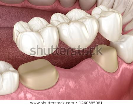 dental bridges stock photo © lighthunter