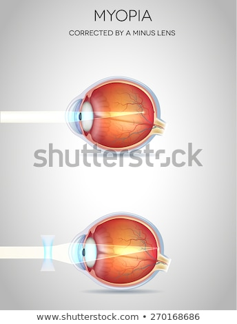 Myopia and myopia corrected by a minus lens. Eye vision disorder Stock photo © Tefi