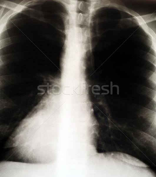 x-ray image Stock photo © taden
