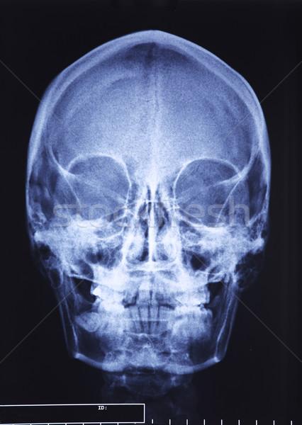 頭蓋骨 X線 クローズアップ 画像 医療 ストックフォト © tiero