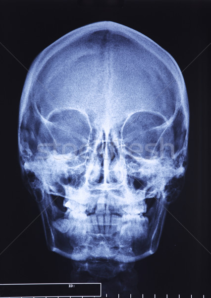 Koponya röntgen közelkép kép klasszikus orvosi Stock fotó © tiero