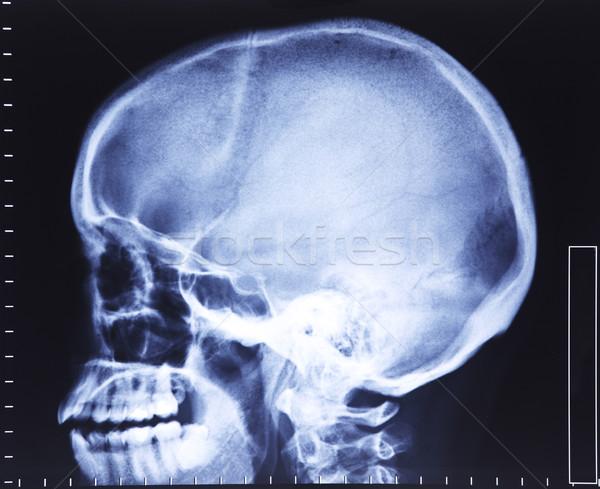 Kafatası xray görüntü tıbbi sağlık bilim Stok fotoğraf © tiero