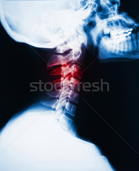 Pescoço raio x dor pormenor imagem vermelho Foto stock © tiero