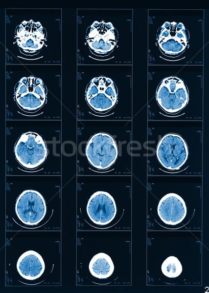 Raio x médico saúde ciência cabeça Foto stock © tiero