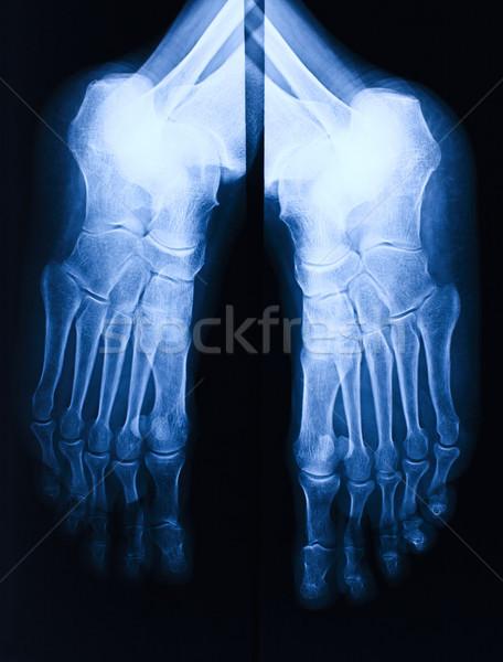foot xray Stock photo © tiero