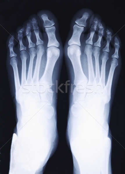feet xray Stock photo © tiero