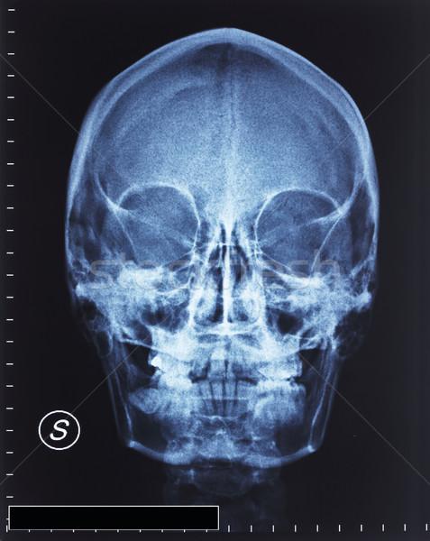 Crânio raio x pormenor cabeça filme médico Foto stock © tiero