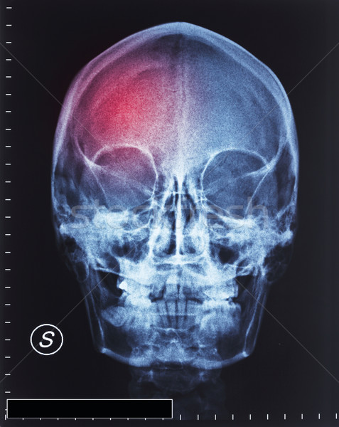 Trauma pormenor cabeça raio x filme médico Foto stock © tiero