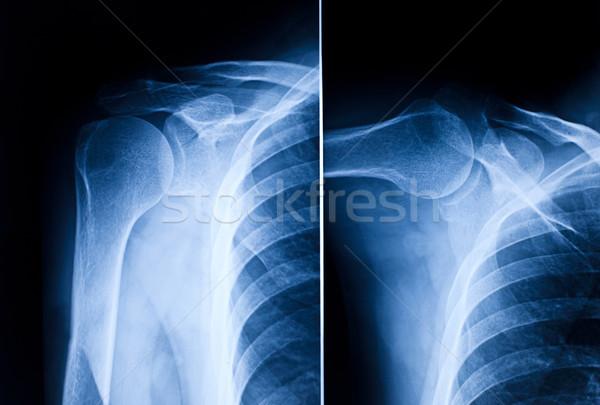 shoulder x-ray Stock photo © tiero