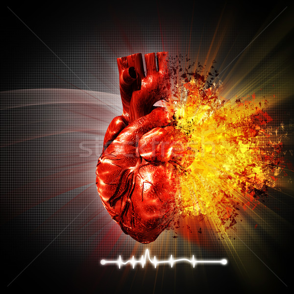 Crise cardiaque résumé médicaux horizons médecine Photo stock © tolokonov