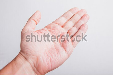 Allergic rash dermatitis leg skin of patient Stock photo © traza