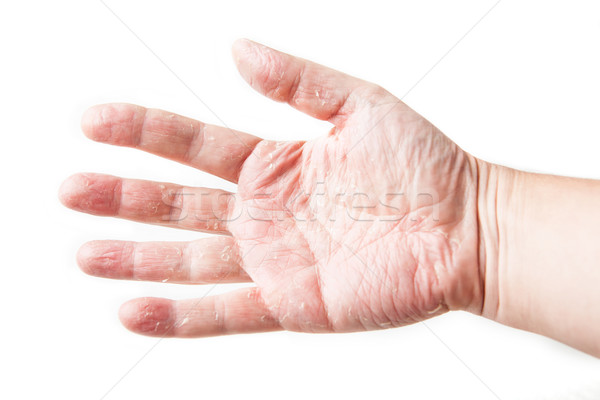 skin disease. Skin Allergy Patch Test on Back of Patient Showing Redness and Swelling. dermatitis Stock photo © traza