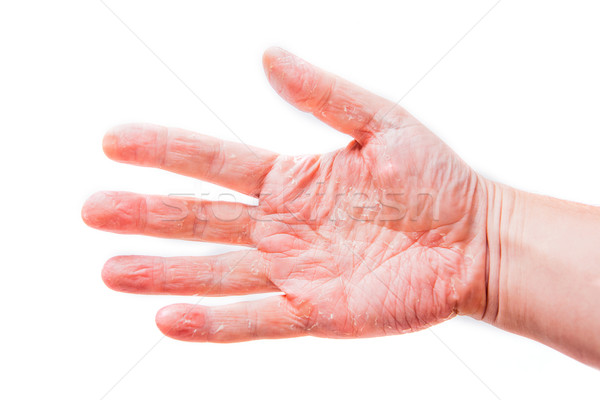 The problem with many people - eczema on hand. Isolated backgrou Stock photo © traza