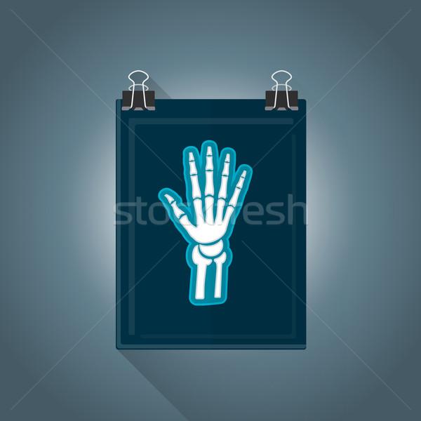 vector flat radiography illustration icon Stock photo © TRIKONA
