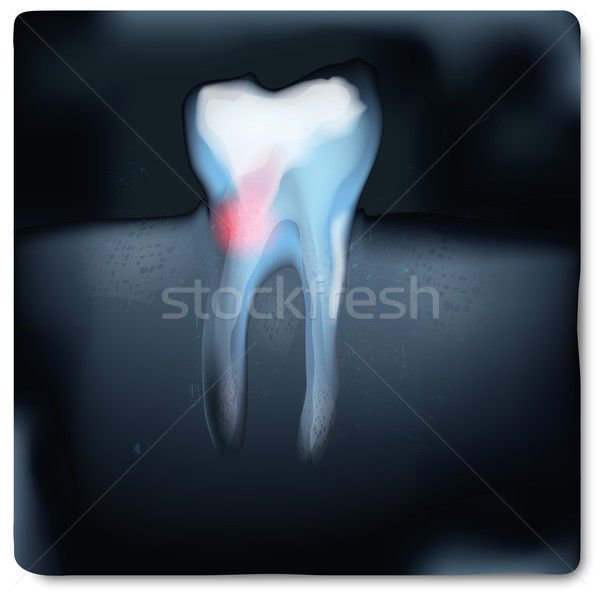 X-ray image with tooth and tooth pain  Stock photo © Ustofre9