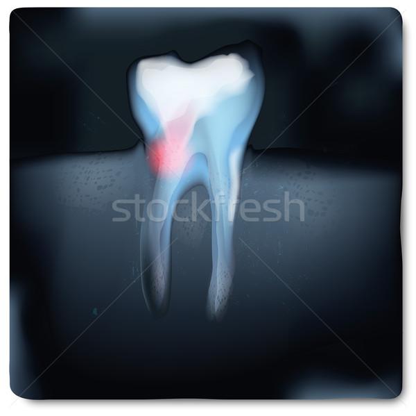 Xray immagine dente dolore corpo luce Foto d'archivio © Ustofre9