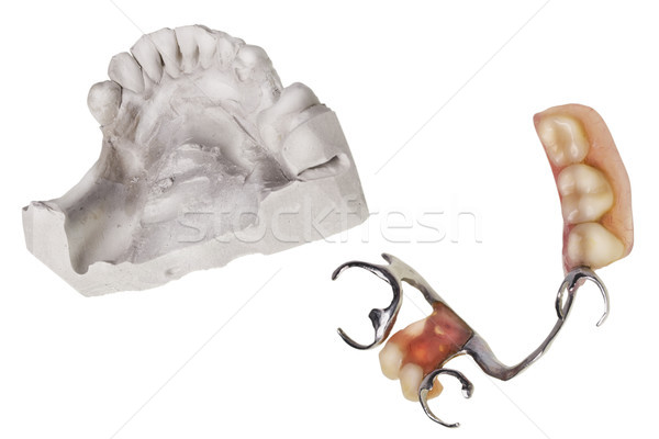 Plaster cast of  teeth and dentures Stock photo © vavlt