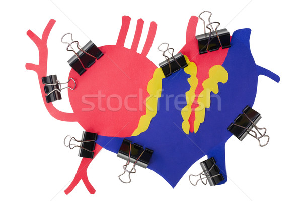 Herat Myocardial infarction attack concept Stock photo © vavlt