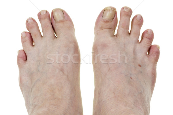 Feets and broken nails Stock photo © vavlt