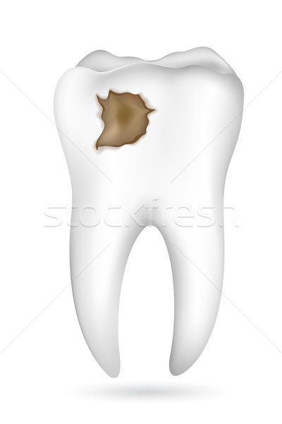 Cavity in Tooth Stock photo © vectomart