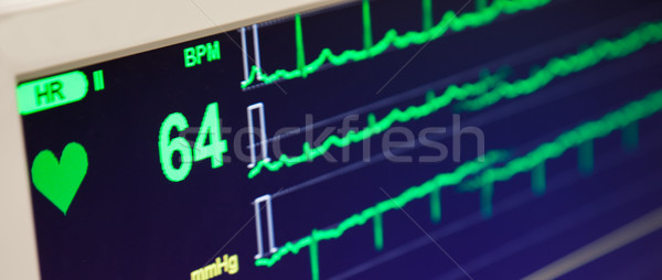 Hartslag monitor elektrocardiogram display cyclus Stockfoto © vilevi